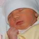 Новорожденная желтушка. Симптомы и причины.