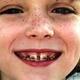 Как современная стоматология исправляет прикус у детей?