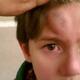 Гематома у ребенка: лечение народными средствами
