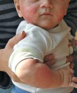 внезапная аллергия причины