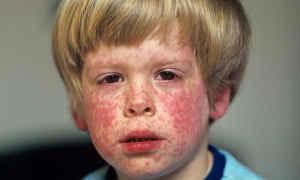 Сыпь на теле у ребенка: на руках, ногах, животе