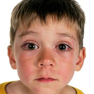 Почему под глазами покраснение у ребенка