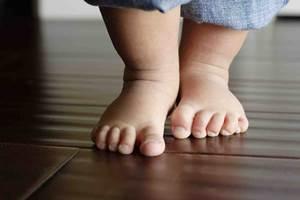 как лечить плоскостопие у детей, как исправить плоскостопие