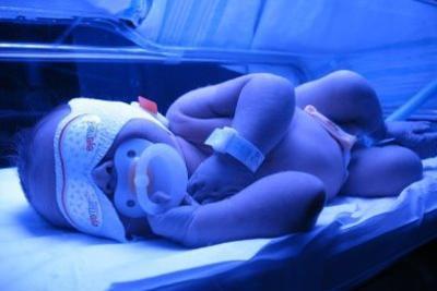 билирубин норма у новорожденных, норма билирубина у новорожденного