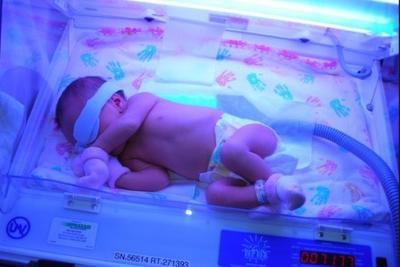 повышен билирубин у новорожденного, анализ крови на билирубин