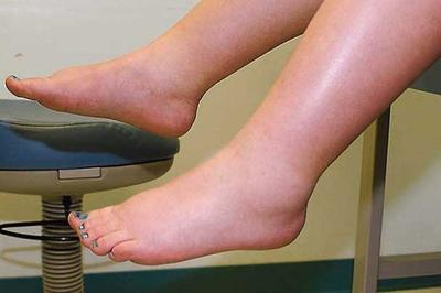отеки ног после родов, отекают ноги после родов